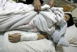 被抢劫的欧女士左手腕动脉和肌腱被砍断