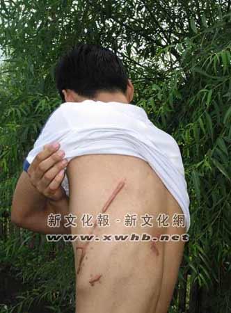 歹徒伤4人3巡警坐视不管 伤者申请国家赔偿(图)