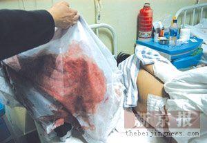 数男子校门口刀砍高职生 该学生腰部肌肉被砍断