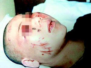 非法拘禁百余天逼写遗书恶警察在大腿脸上刺字情妇表情包可爱喵咪抱图片