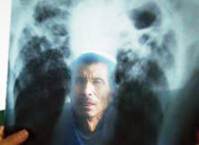 2005百姓帐本:一位尘肺病医生的救治账本