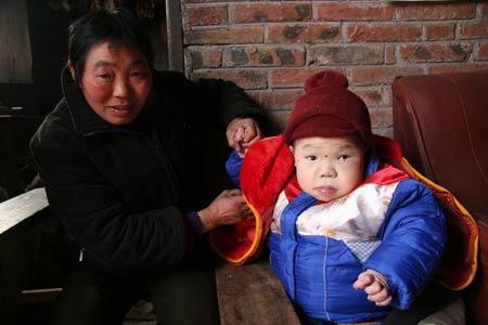 四川雅安女孩马朝琴22岁却如2岁幼儿