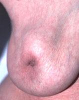 乳腺癌时 乳房出现肿块并不是唯一的症状
