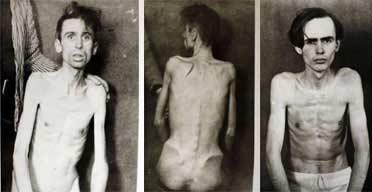 冷战期间英虐囚照曝光 囚犯骨瘦如柴遍体伤(图)