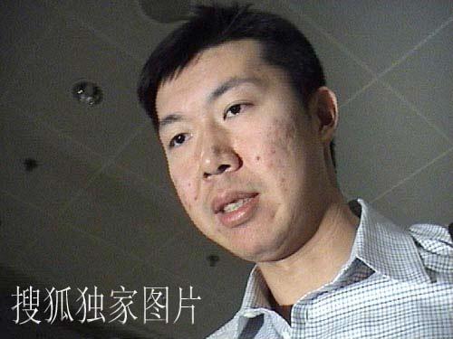 搜狐独家图片:大郅今天凌晨抵达北京 表情严肃