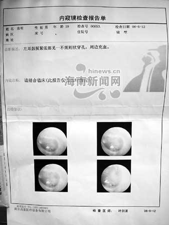 18岁少年被疑盗窃 派出所内被警察打穿耳膜(图)