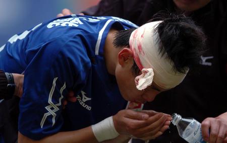 图文:青岛胜天津 刘健与对手争顶时头部受伤
