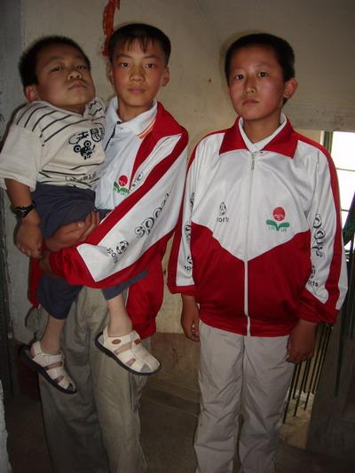 程虹的弟弟_16岁了身高才84厘米临江两孩子都患了粘多糖病(图)-搜狐新闻