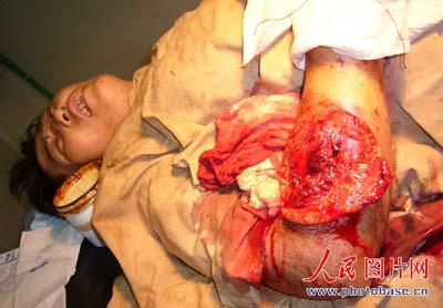 赵雅芝/受伤王某的妻子的右胳膊被砍伤...