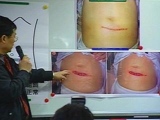 真调会公布七疑点 指扁腹部伤非案发当天造成