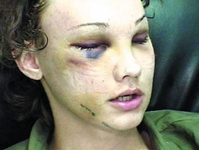 电视台整容真人秀节太血腥 脸被手术刀切开(图)