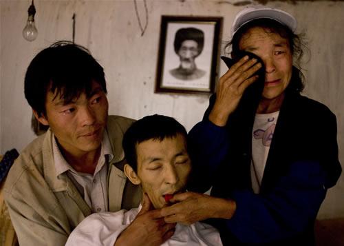 云南宣威癌症发病率高
