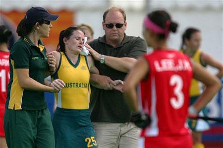 图文:女曲世界杯澳大利亚险胜 澳队员受伤离场