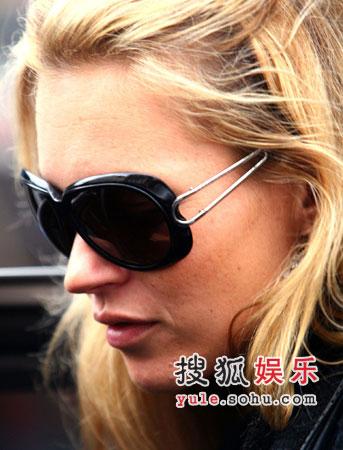 凯特-摩丝鼻翼凹陷 专家称是吸毒过量所致(图)