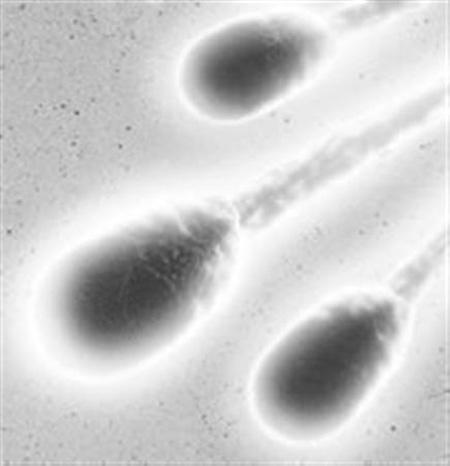 科技时代_人造精子首次成功培育生命 有望解决男性不育