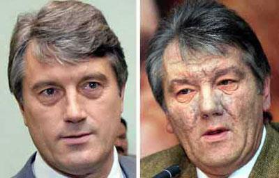 """乌克兰总统尤先科""""解毒""""成功 二恶英减少80%"""