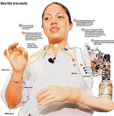 在这项新技术的帮助下,她可以通过思想活动来控制机械手.