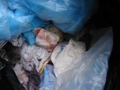 清洁车里的黑色垃圾袋中,有动物毛和带血的纱布。