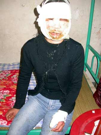 章荣爱受伤后的照片