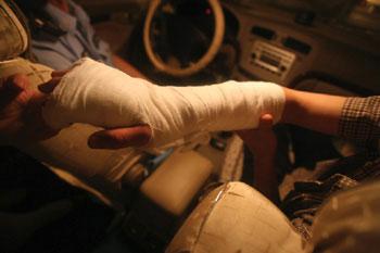 受伤学生手臂被打上石膏
