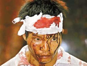 用铁链伤人的陈某自己也满头是血。