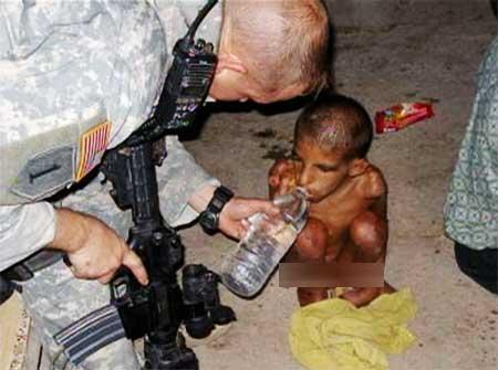 被解救的孤儿浑身是伤,瘦骨嶙峋。