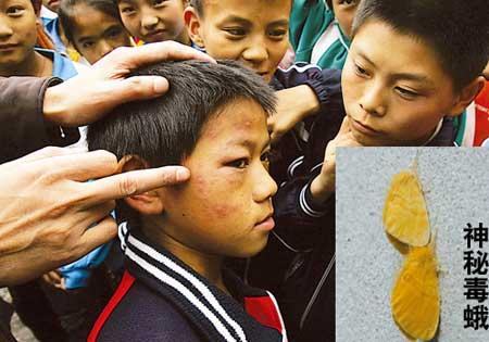 """昨日,渝北区茨竹镇,一被""""叮""""的同学满脸都是红色包块 记者钟志兵摄"""