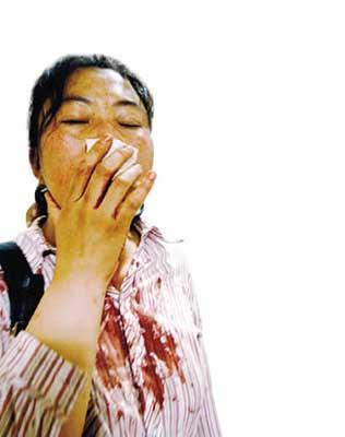薛女士鼻梁骨被打骨折