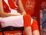 赵蕊蕊腿上伤疤明显