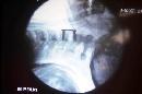 图文:王燕搬离重症监护病房 王燕手术处X光片