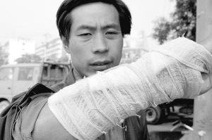 照片:一位受伤的农民工。国新摄