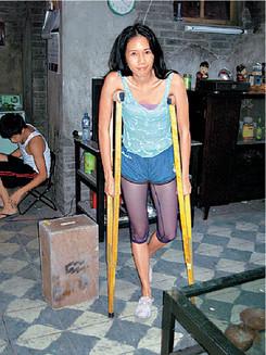 莫文蔚因车祸导致骨折,只能靠双拐走路