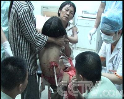 妹妹的逼都被干黑了_国内新闻 cctv生活567 生活服务    一名小伙子右腿大腿根被一条螺纹