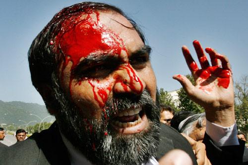9月29日,在伊斯兰堡最高法院外,一名律师被打的头破血流。