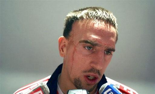 图文:[友谊赛]法国队积极备战 里贝里答记者问