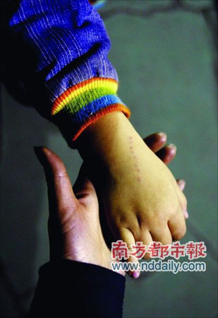 广州一幼儿园老师针扎男童