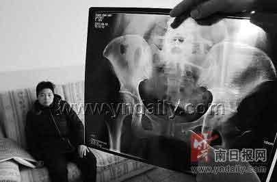 X光片显示该女子盆腔内留有金属针状物