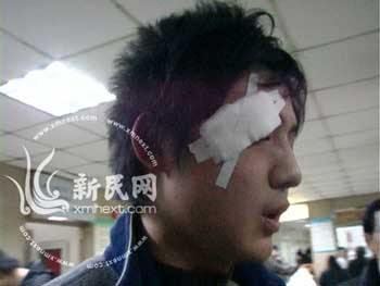 受伤的乘客 新民网网友 凌叶供图