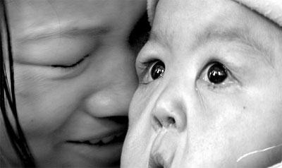 """(一岁的丽丽(右)脸上皮肤严重下垂,甚至有了""""皱纹"""",依偎在妈妈怀里的她只有那双眼睛依旧稚气。)"""