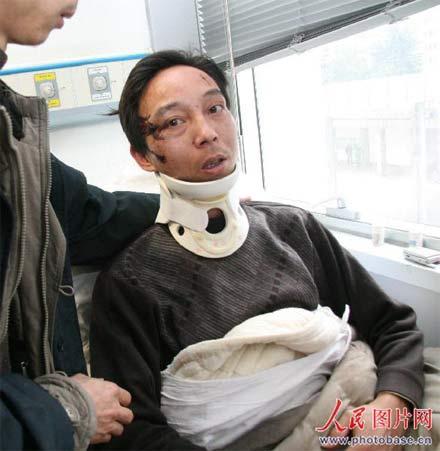 头部、脖子均受伤的163路公交司机。  版权作品,请勿转载。