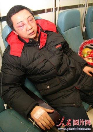 双眼被打肿的49路公交司机。  版权作品,请勿转载。