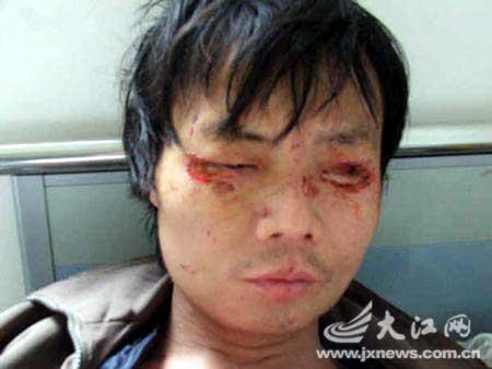 聂牛强2006年受妻子虐待后住院治疗时的照片。图/记者金其会