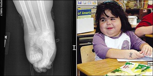 x光片拍出夏伊洛的双腿长在一起 就像美人鱼(左)8岁的夏伊洛