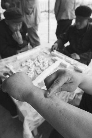 村民冉小五被狗所伤,留下伤疤,却因太贵没打疫苗。
