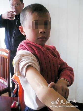 8岁铭铭露出伤残的右手臂。