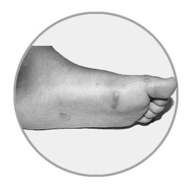 手、足出现或平或凸的斑丘疹或疱疹