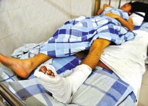 身受重伤的张华仍躺在番禺大石人民医院的病床上。乔军伟 摄
