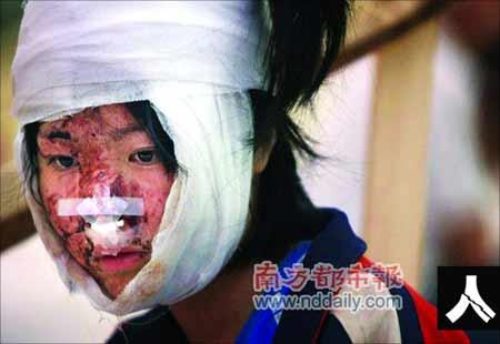 北川县一名幸存的中学生被救出,伤痕累累