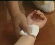 烫伤,紧急救援,视频