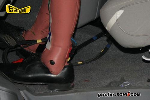 """驾驶员左脚脚腕出现的""""伤痕"""""""